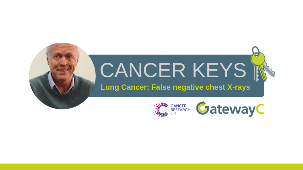 Cancer keys lung cancer false negative chest x-rays