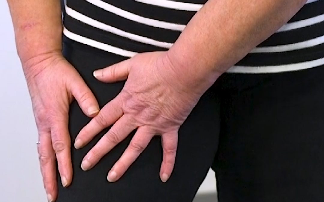 5 tips to treat infection and lymphoedema