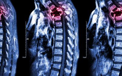 Are bone metastases visible on an X-ray?