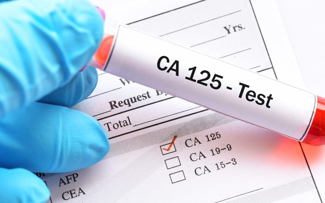 How reliable is the CA125?